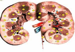 Биорезонансная диагностика - результат обследования правой почки