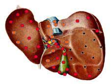 Биорезонансная диагностика - результат обследования печени