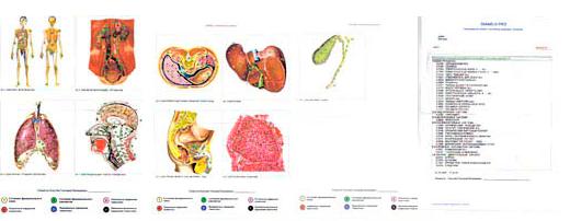 пример результата биорезонансной диагностики организма